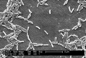 Mikroskooppikuva kampylobakteereista. Kuva: Wikimedia Commons