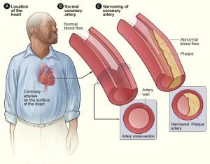 Kolesteroli
